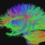 Scientists decode dream content using brain scans