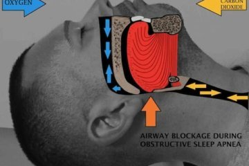 My husband has sleep apnea
