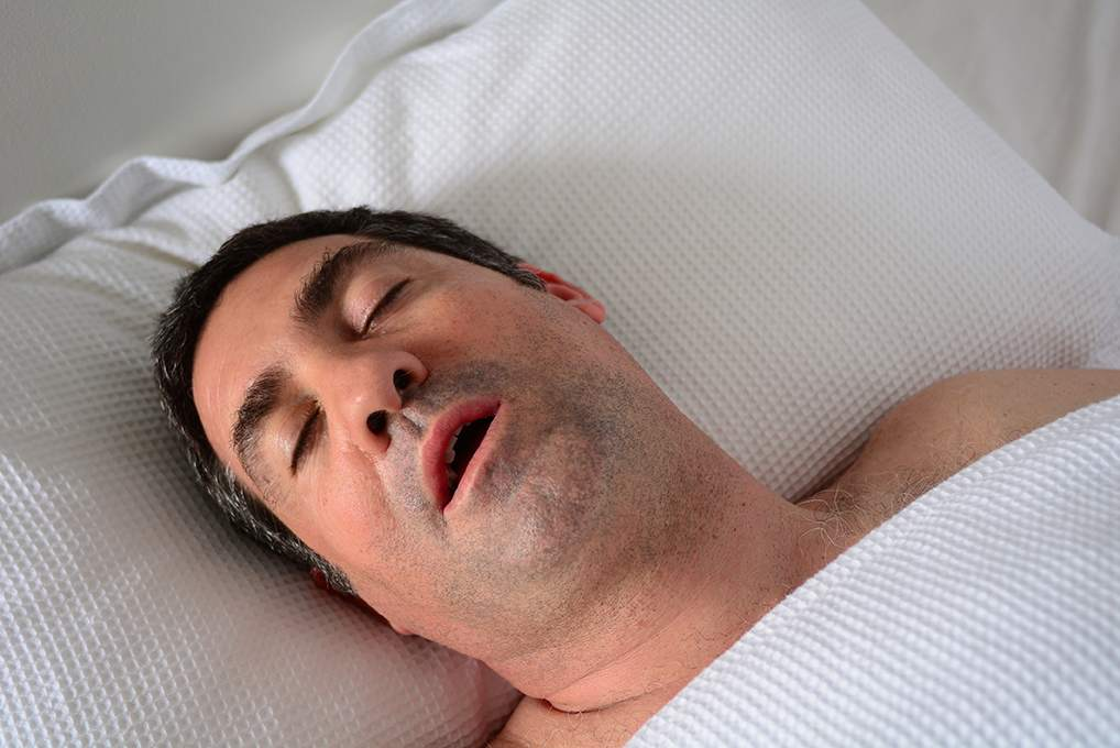 Is sleep apnea always accompanied by snoring?