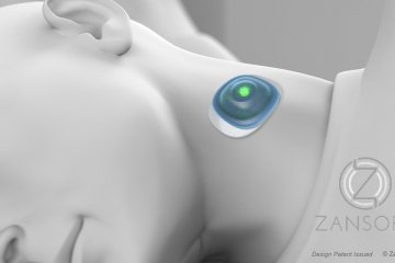 Zansors wireless sleep apnea screening sensor