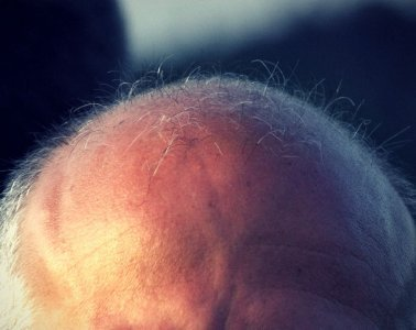 can lack of sleep cause hair loss?